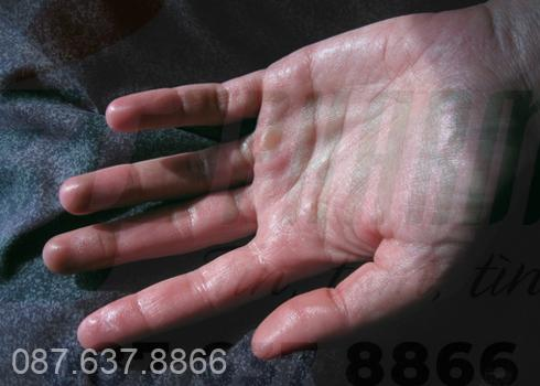Bị ra mồ hôi tay chân bẩm sinh có nên dùng thuốc trị mồ hôi trộm ĐứcThịnh 1