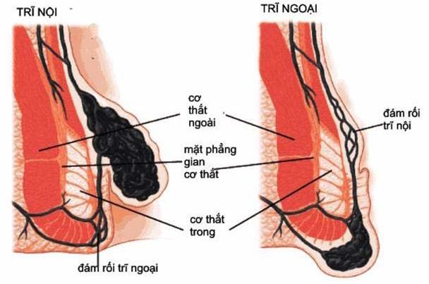 Đặc điểm của trĩ nội 1