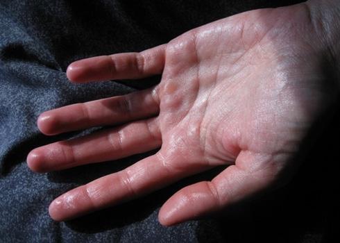 Bị ra mồ hôi tay chân bẩm sinh có nên dùng thuốc trị mồ hôi trộm ĐứcThịnh