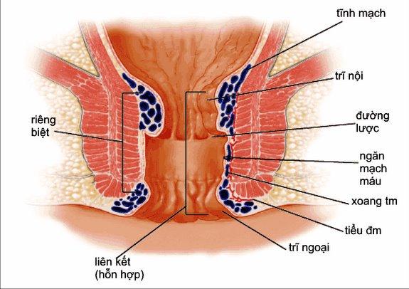 Bệnh trĩ – Nếu không được chữa trị kịp thời