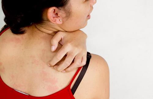 Bị nổi mẩn ngứa khắp người là bệnh gì? 1