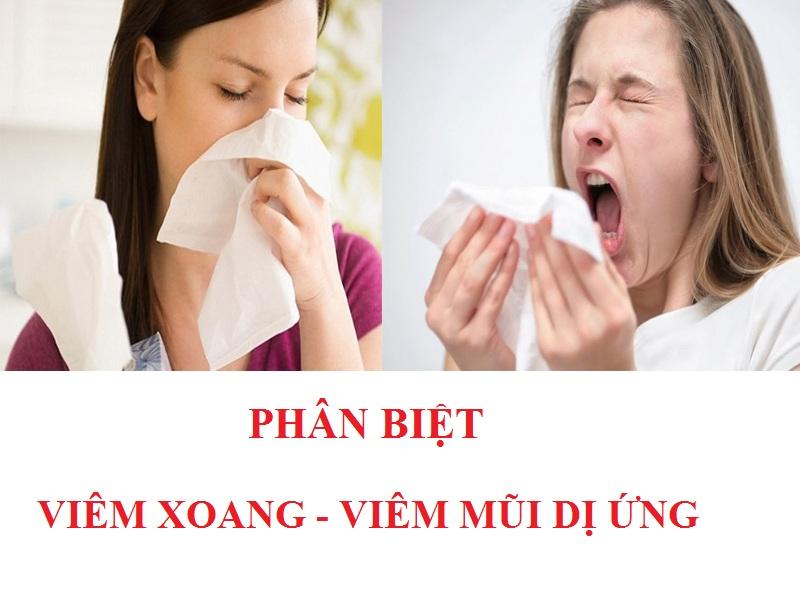 Hướng dẫn phân biệt viêm xoang và viêm mũi dị ứng